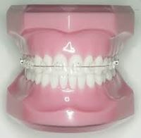 Picture for category Orthodontic Products